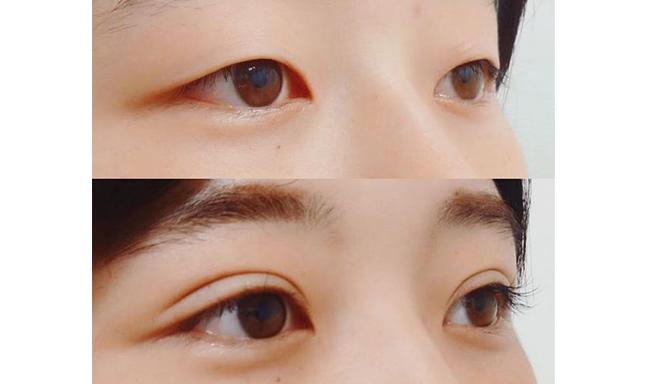 DUP 折式隐形 双眼皮胶水 4ml